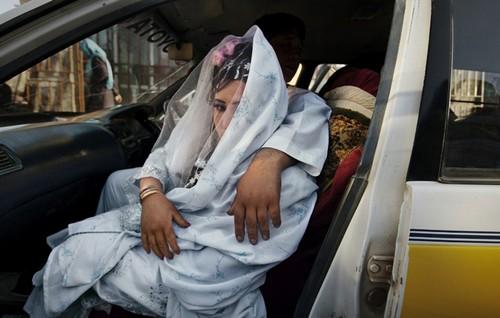 تصاویر دردناک از زخمهایی بر تن زنان افغان  تصاویر دردناک از زخمهایی بر تن زنان افغان 19 1