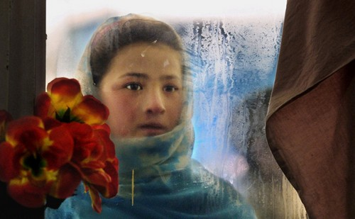 تصاویر دردناک از زخمهایی بر تن زنان افغان  تصاویر دردناک از زخمهایی بر تن زنان افغان 24 1