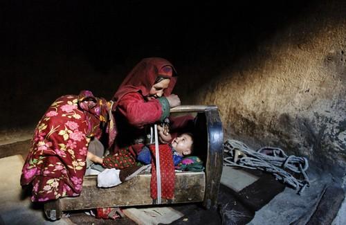 تصاویر دردناک از زخمهایی بر تن زنان افغان  تصاویر دردناک از زخمهایی بر تن زنان افغان 25 1