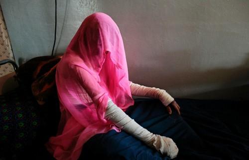 تصاویر دردناک از زخمهایی بر تن زنان افغان  تصاویر دردناک از زخمهایی بر تن زنان افغان 27 1