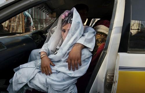 تصاویر دردناک از زخمهایی بر تن زنان افغان