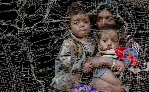 تصاویر دردناک از زخمهایی بر تن زنان افغان  تصاویر دردناک از زخمهایی بر تن زنان افغان 30 1