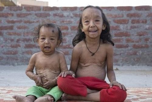 دختر هندی 7 ساله با صورت پیر و باورنکردنی (عکس)