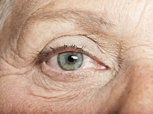چگونه چروک چشم خود را اصلاح کنیم؟