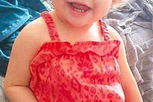 مرگ این دختر 14 ماهه بر اثر پرکردن دندانش (عکس)