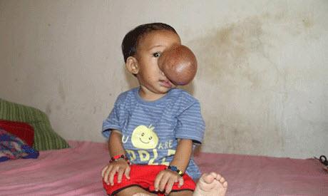 رشد تومور ترسناک بروی صورت این دختر بی گناه (عکس)