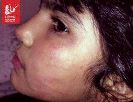 اقدام وحشیانه دندانپزشک مرد با دختر 6 ساله (عکس)  اقدام وحشیانه دندانپزشک مرد با دختر ۶ ساله (عکس) 146927226753532 irannaz com