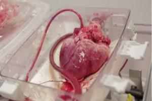داستان زیبای اهدای قلب