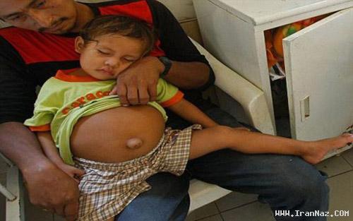 حاملگی بسیار عجیب دختر 3 ساله در پرو (عکس)