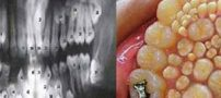 پسر عجیب هندی با 264 عدد دندان! (عکس)
