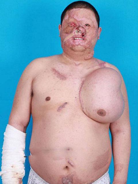عکس های رشد صورتی جدید در سینه این مرد (18+)