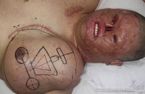 عکس های رشد صورتی جدید در سینه این مرد (18+)  عکس های رشد صورتی جدید در سینه این مرد (۱۸+) 147060021460322 irannaz com