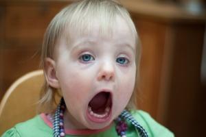 بیماری بسیار عجیب این دختر بچه هندی (عکس)
