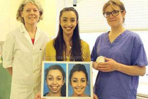 این خانم زشت با جراحی فک دختر زیبایی شد! (عکس)