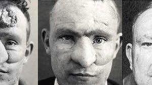 این مرد اولین نفری بود که بینی خود را عمل کرد (عکس)