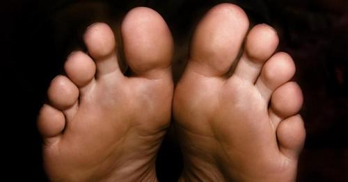 از عوامل ایجاد میخچه در پا چه می دانید؟