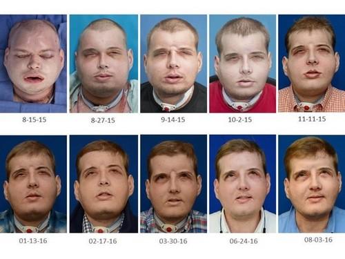 بی سابقه ترین عمل پیوند صورت در انسان (عکس)