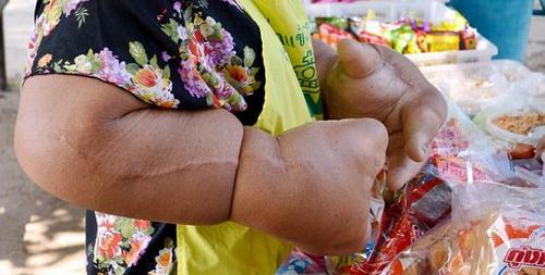 سوژه شدن این زن بخاطر فرم دست هایش (عکس)  سوژه شدن این زن بخاطر فرم دست هایش (عکس) 147291335050896 irannaz com