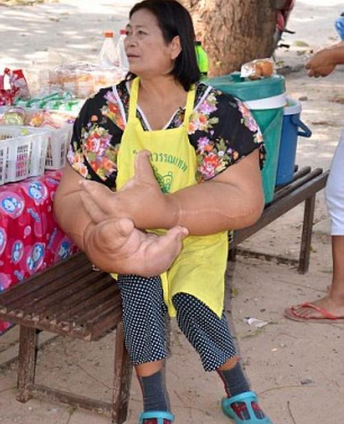 سوژه شدن این زن بخاطر فرم دست هایش (عکس)