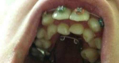 این پسر عجیب و غریب دارای 264 دندان می باشد (عکس)