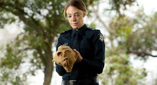 عکس هایی از زندگی این پلیس زن بعد از آتش سوزی