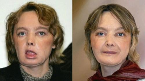 مرگ اولین زنی که عمل پیوند صورت را انجام داد (عکس)