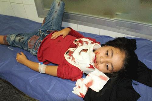 مصدومیت شدید این کودک بر اثر واژگونی سرسره (عکس)