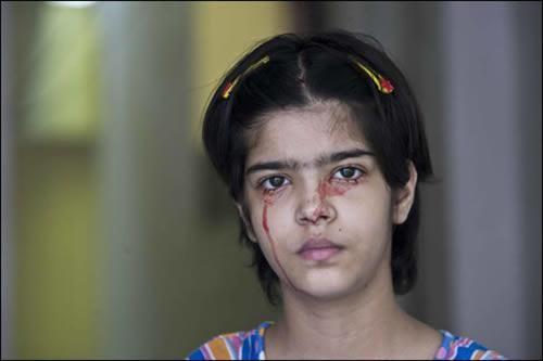 این دخترک به جای اشک خون می گرید (عکس)  این دخترک به جای اشک خون می گرید (عکس) 147404513161306 irannaz com