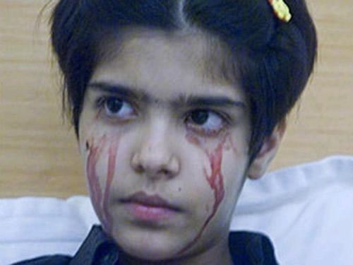 این دخترک به جای اشک خون می گرید (عکس)  این دخترک به جای اشک خون می گرید (عکس) 147404513385396 irannaz com
