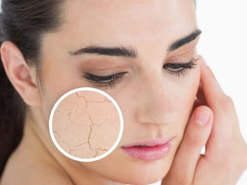 چگونه پوست خشک صورت را درمان کنیم؟