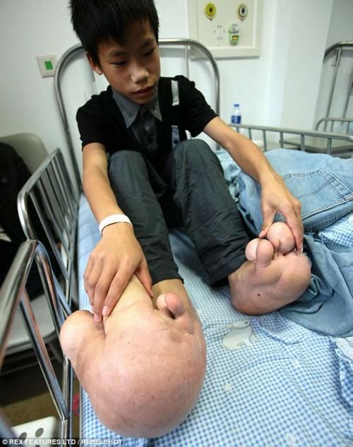 این پسر دارای عجیب ترین پاهای دنیا است (عکس)