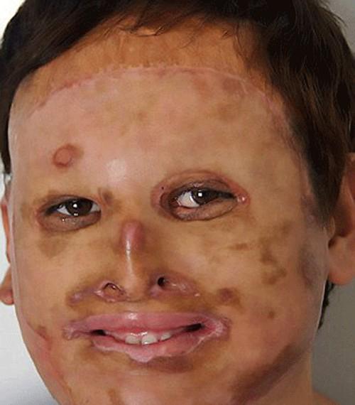 بازگشت این مرد بدون چهره بعد از 20 سال (عکس)