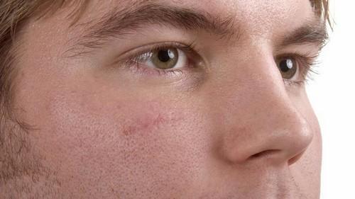 چگونه جای زخم روی صورت را از بین ببریم؟!