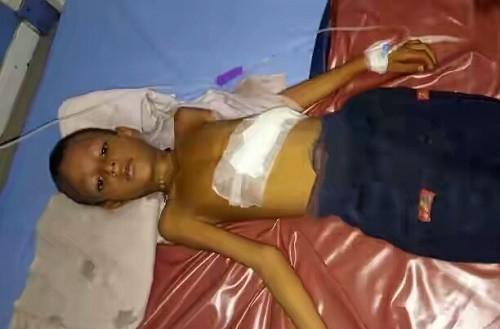 باردار شدن باورنکردنی پسر 6 ساله هندی (عکس)
