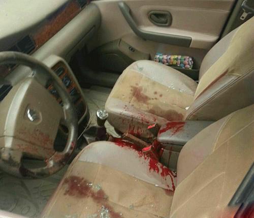 قتل وحشتناک جوان 34 ساله در آستارا (عکس)