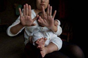متولد شدن کودکی با 31 انگشت (عکس)