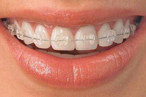 درست کردن فرم دندان ها با ارتودنسى