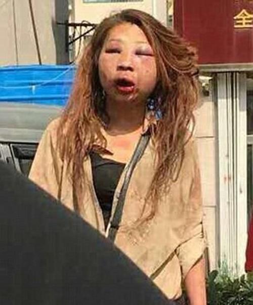 قیافه ی باورنکردنی این دختر بعد از کتک خوردن (عکس)