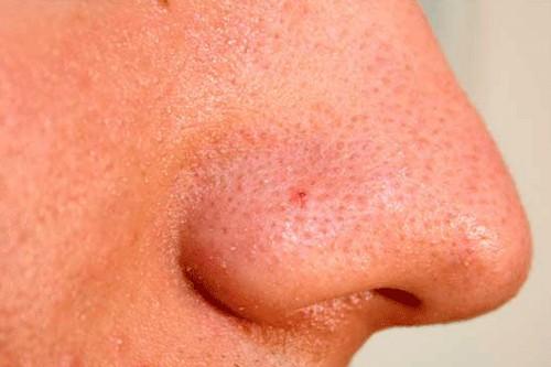 چگونه منافذ پوست را باید ببندیم؟