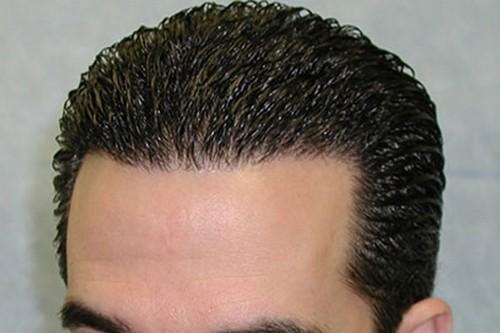 کدام روش برای کاشت مو بهتر است؟!