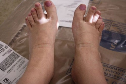 علت ورم کردن پای سالمندان چیست؟!