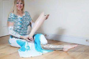 این رقصنده ی معروف فقط یک پا دارد (عکس)