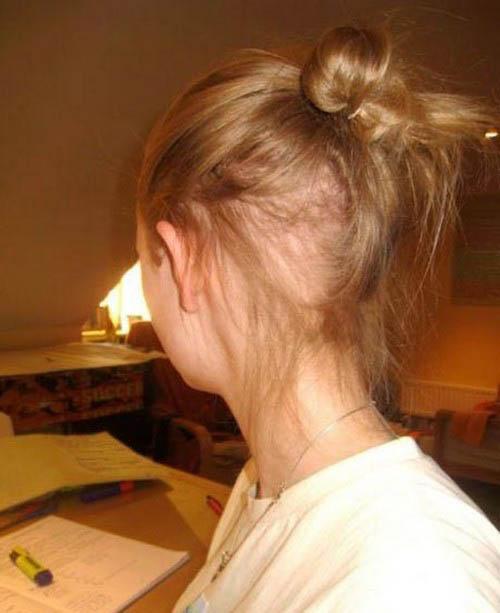 عادت وحشتناک این دختر به کندن موهایش (عکس)