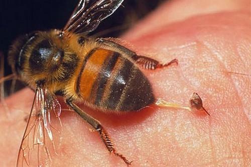راهی برای درمان زنبور گزیدگی