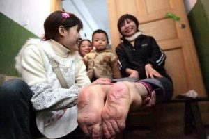 شهرت این زن بخاطر پاهای برعکسش (عکس)