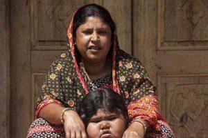 چاق ترین کودک جهان روزی 14کیلو برنج می خورد (عکس)