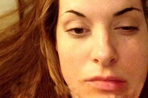 این زن دچار بیماری خودکشی شده است (عکس)