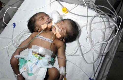 متولد شدن پسر دوسر در هندوستان (عکس)