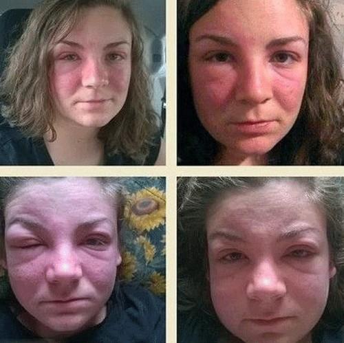 عوض شدن چهره ی این زن بعد از دست زدن به درخت (عکس)