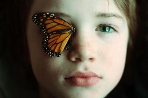 از بیماری پروانه ای چه می دانید؟